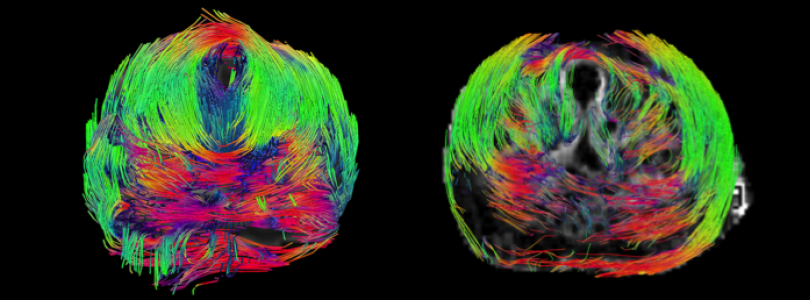 DTI fibre tracking MRI in an ex-vivo human prostate